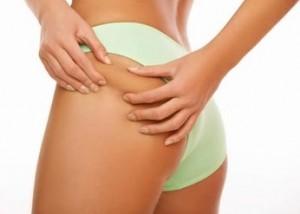 Cellulite: l' esame che precede la mesoterapia omeopatica
