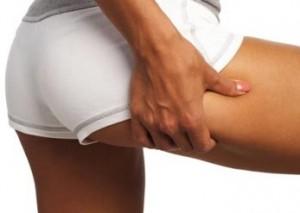 Mesoterapia omeopatica e cellulite
